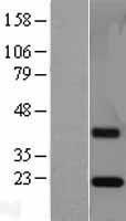 NBL1-10343 - ESM1 Lysate