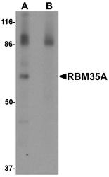 NBP1-76536 - ESRP1 / RBM35A