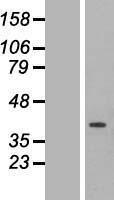 NBL1-10349 - ETFA Lysate