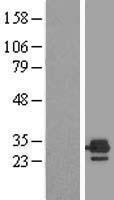 NBL1-10350 - ETFB Lysate