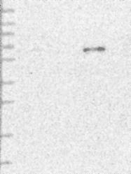 NBP1-83950 - ETFDH
