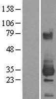 NBL1-10352 - ETHE1 Lysate