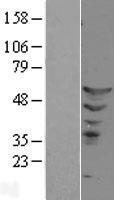 NBL1-10356 - ETS2 Lysate