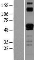 NBL1-10362 - ETV6 / Tel Lysate
