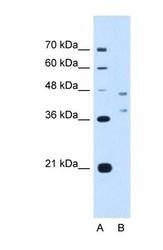 NBP1-59952 - CD361 / EVI2B