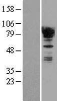 NBL1-10371 - EWSR1 Lysate