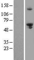 NBL1-10372 - EXD1 Lysate