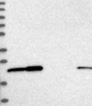 NBP1-84523 - EXOSC1
