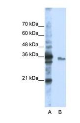 NBP1-57209 - EXOSC3