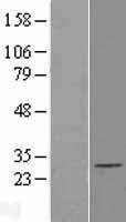 NBL1-10387 - EXOSC5 Lysate