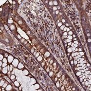 NBP1-91875 - Exostosin-1