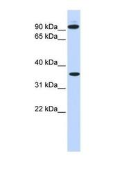 NBP1-58297 - Exostosin-2