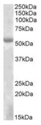 NBP1-46136 - EYA1