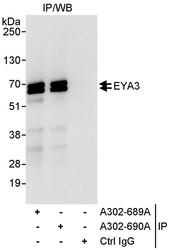 NBP1-46819 - EYA3