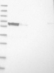 NBP1-84625 - ELP3