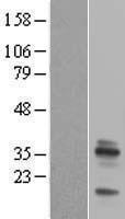 NBL1-10253 - Emerin Lysate
