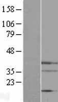 NBL1-10264 - Endo G Lysate