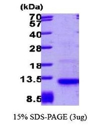 NBP1-30217 - Eotaxin-3 / CCL26