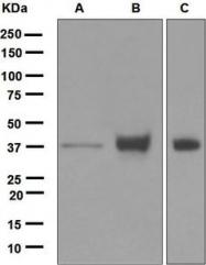 NBP1-95700 - CD326 / EPCAM / TACSTD1