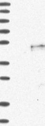 NBP1-89404 - CD326 / EPCAM / TACSTD1