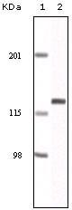 NBP1-47400 - EPHA2 / ECK