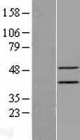 NBL1-10305 - Epithelial Stromal Interaction 1 Lysate