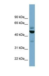 NBP1-58223 - TUBE1