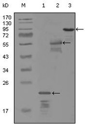 NBP1-47422 - ERBB3 / HER3