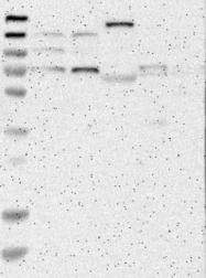 NBP1-90371 - ACTA2 / aortic smooth muscle Actin
