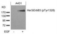 NBP1-04970 - ERBB3 / HER3