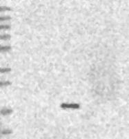 NBP1-85890 - ESM1
