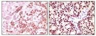 NB100-2179 - Estrogen receptor alpha