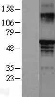 NBL1-10345 - Estrogen Receptor beta Lysate