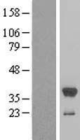 NBL1-16606 - Estrogen Sulfotransferase Lysate