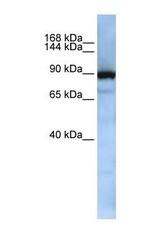 NBP1-57176 - XPOT / Exportin-T