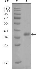 NBP1-47350 - FABP4