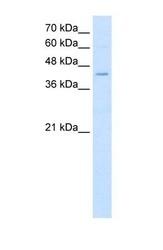 NBP1-60085 - Fatty acid desaturase 1 (FADS1)