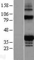NBL1-10429 - FAHD2A Lysate