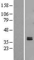 NBL1-10430 - FAHD2B Lysate