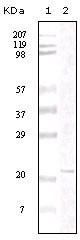 NBP1-47341 - FAK1 / PTK2