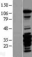 NBL1-14951 - FAK Lysate