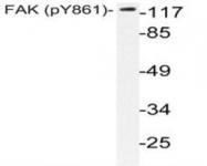 NBP1-51423 - FAK1 / PTK2