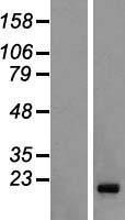 NBL1-10459 - FAM122C Lysate