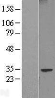 NBL1-10460 - FAM124B Lysate