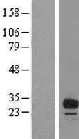 NBL1-10462 - FAM125B Lysate