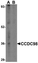 NBP1-76827 - CCDC98