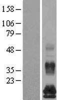 NBL1-10512 - FAM19A5 Lysate