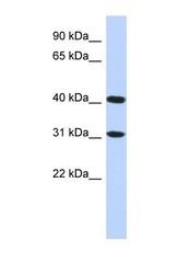 NBP1-56728 - FAM46D