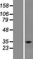 NBL1-10545 - FAM57B Lysate