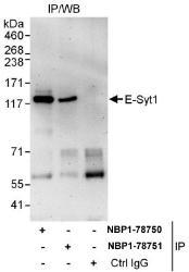 NBP1-78750 - ESYT1